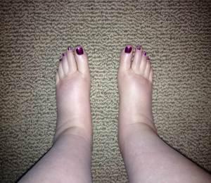 puffy feet