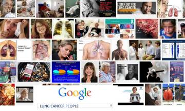 Lung cancer people