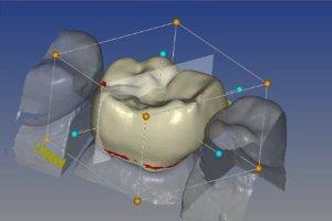3D crown printing